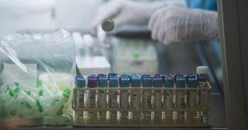 La France confirme un premier cas issu de la nouvelle souche de coronavirus